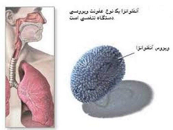 درمان یک روزه آنفولانزا